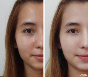 hieu-qua-su-dung-serum-duong-da-shiseido-aqualabel-royal-rich-essence-mau-vang-30ml-1.jpg