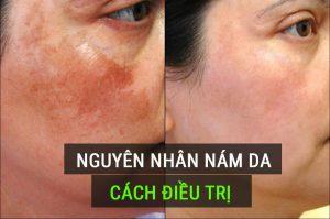 Nguyên nhân gây tàn nhang nám da mặt vùng má